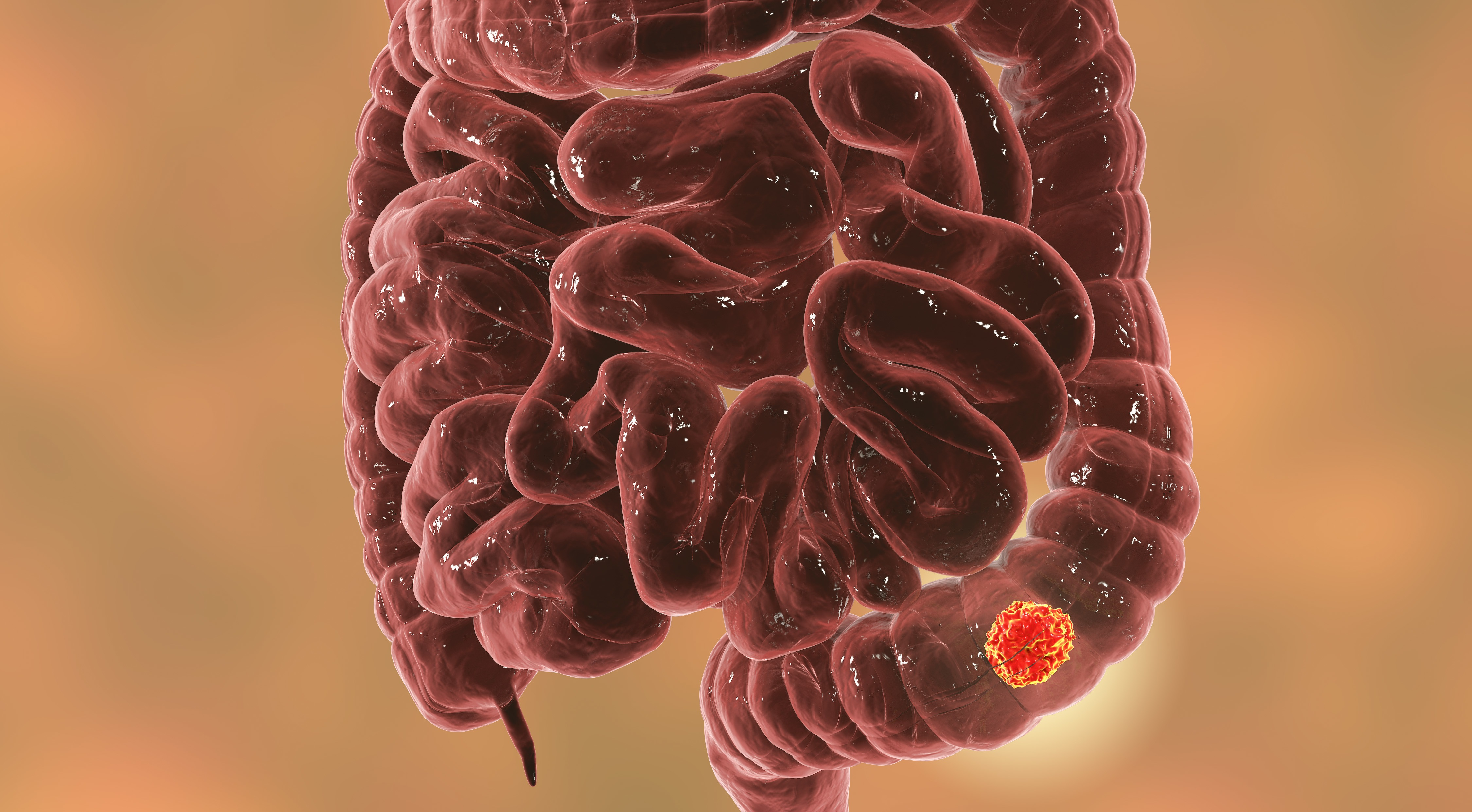 Colorectal Cancer Could See Array Stand Alone At Last Evaluate