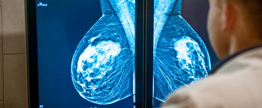 Doctor sitting in front of screens showing breast cancer scans