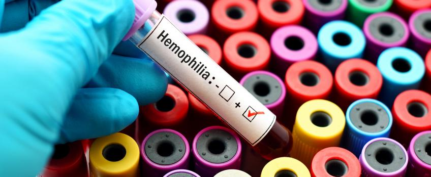 Tube of blood labelled haemophilia positive.