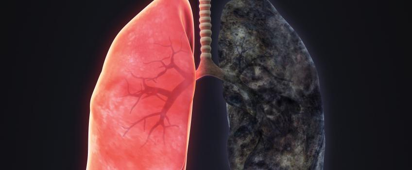 Astra seeks a survival benefit with its lung triplet | Evaluate